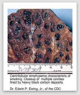 smoking related illnesses, lung with tar