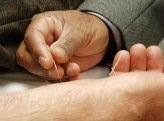 alternative therapies, acupuncture